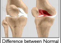 arthritis-in-knee1